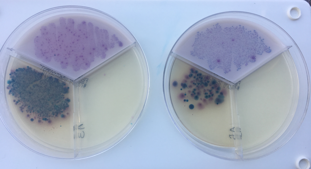 two agar plates showing microbial growth in colostrum